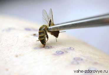 Апитерапия - лечение пчёлами
