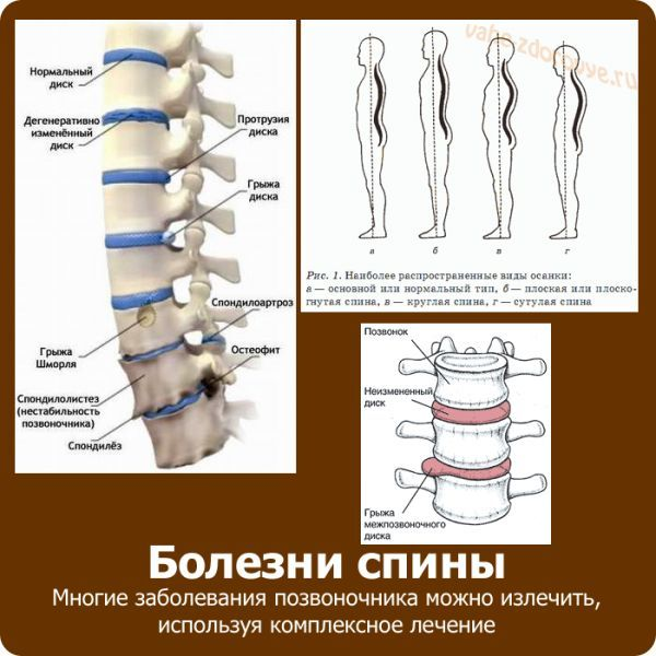 Болезни спины и их лечение