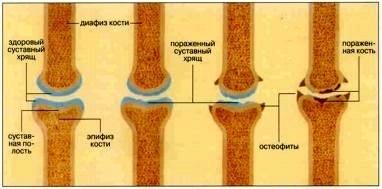 артроз суставов симптомы