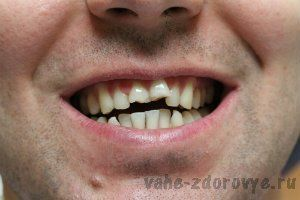 Лечение зубов стоматология