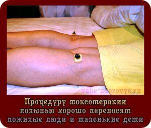 Процедуры моксотерапии полынью