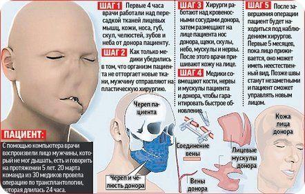 трансплантация лица