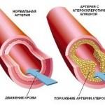 Как очистить сосуды от холестериновых отложений?